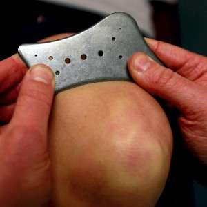 Therapist hands demonstrating the use of the ISTM tool above a patient's knee