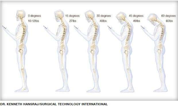 Texting can be a pain in the neck!